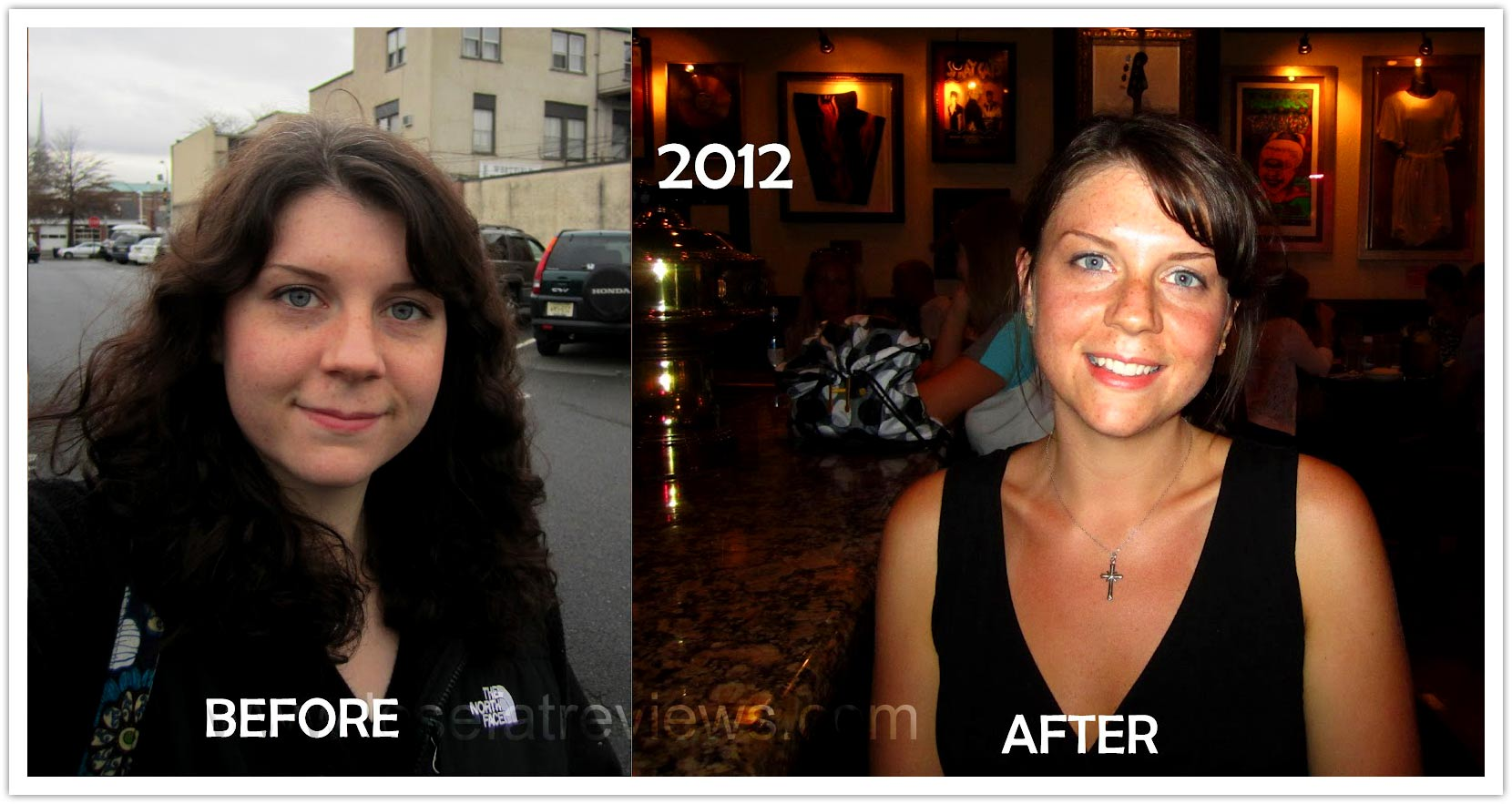 weight-loss-before-and-after003