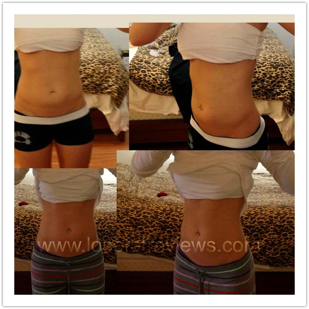 weight-loss-before-and-after035