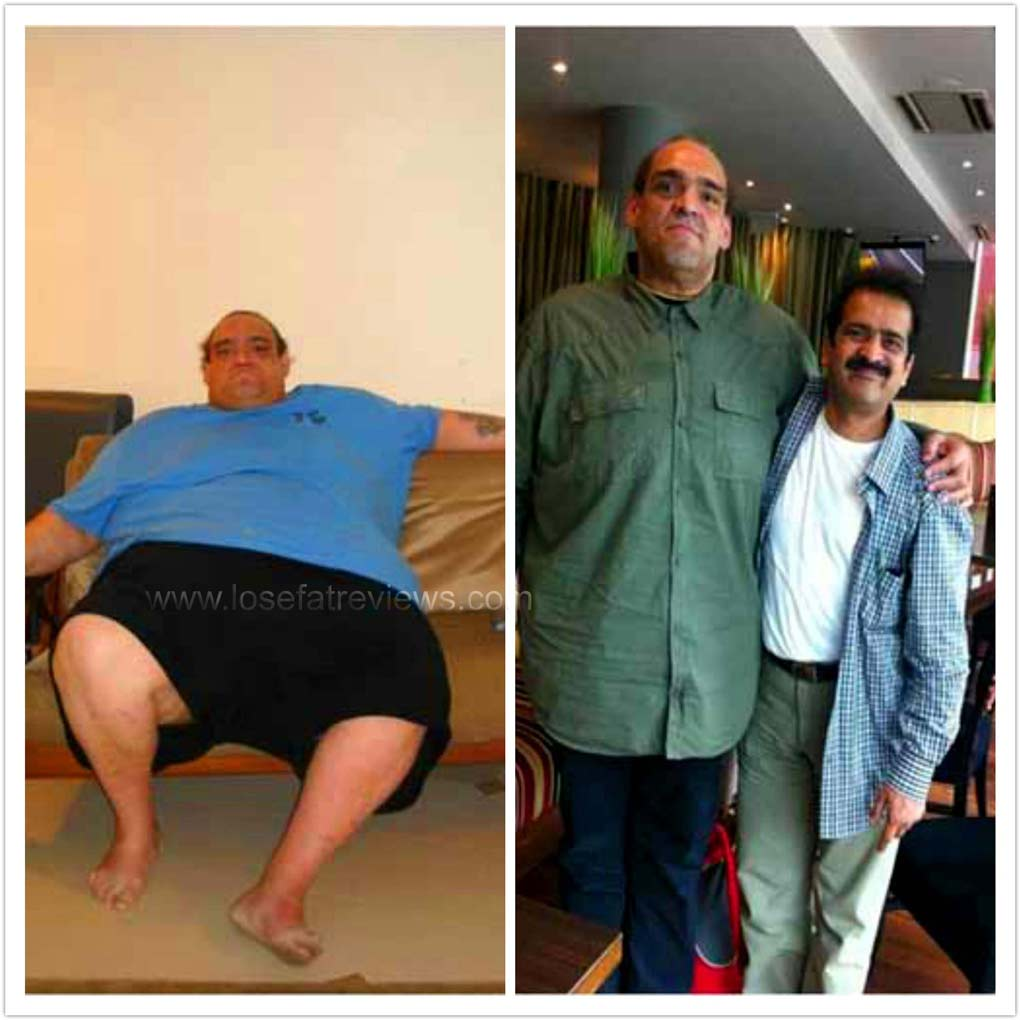 weight-loss-before-and-after044