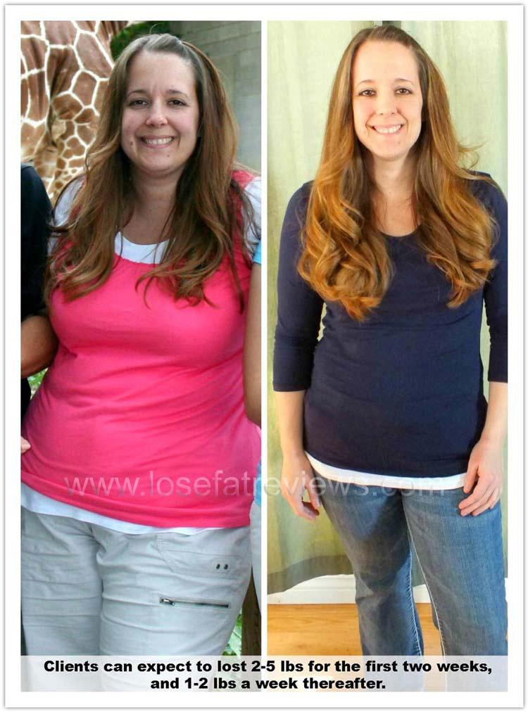 weight-loss-before-and-after045