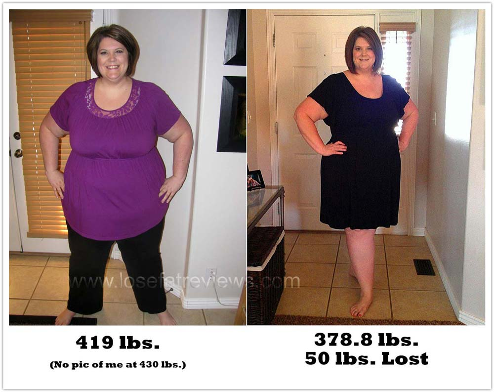 weight-loss-before-and-after068