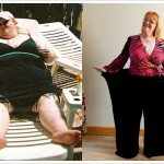 Shocking Pictures – Before And After Weight Loss – Success